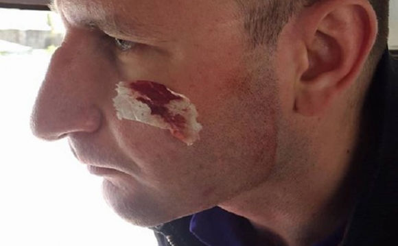 Корреспондента изВолыни избили камерой поголове из-за расследования о горючем